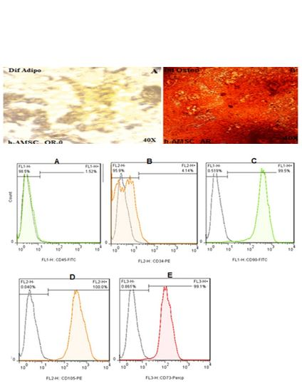 An Inexpensive and Simple Method for Isolation Mesenchymal Stem Cell of Human Amnion Membrane